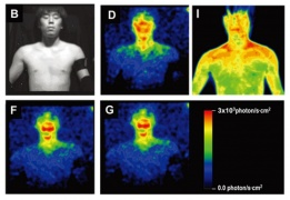 Biophotonics studies light emitted by living things - has it proved Human auras and acupuncture?