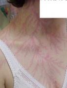 human skin feathering lightning flowers close up photograph